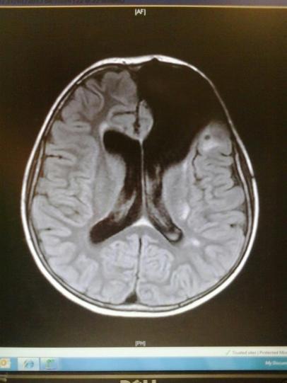 Ryans brain